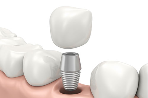 Dental Implants Rebuild Your Smile & Much More