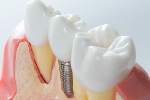 Improve Your Diet – and Your Life – With Teeth Implants